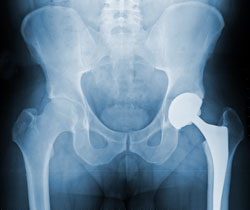 Hip_x-ray_10